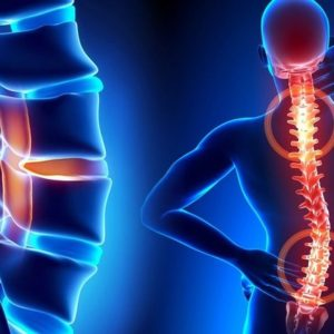 Остеохондроз – чому треба лікувати вчасно ?